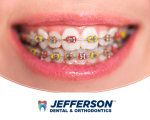 Braces color combinations red and yellow