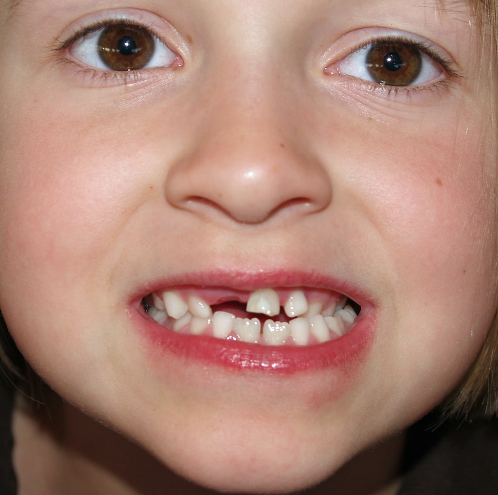 Boy showing off his first baby tooth being pulled