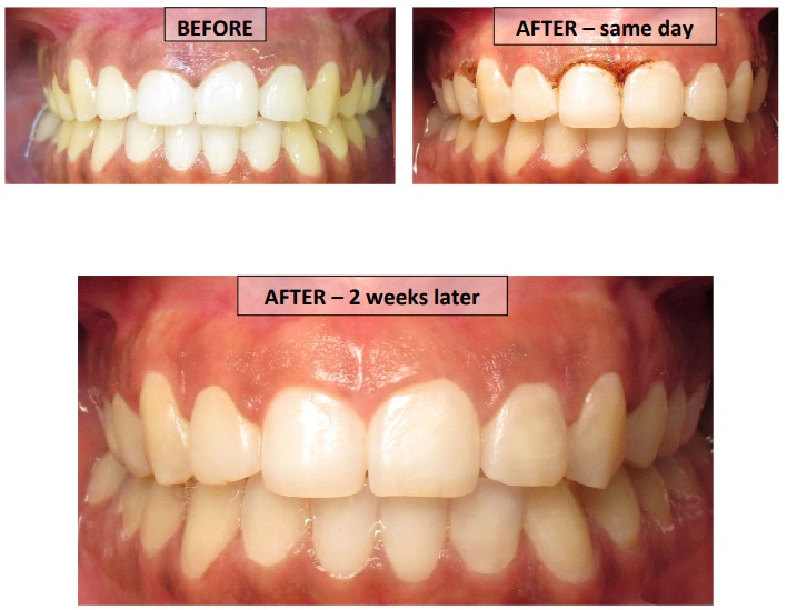 Gingivectomy before and after images